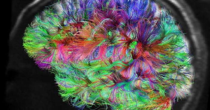 Brain scan from the Human Connectome Project